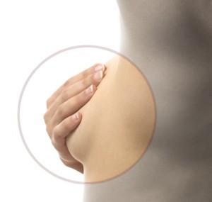乳がんの遺伝子検査について
