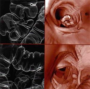 仮想内視鏡でみる大腸
