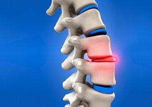 椎間板の再生医療について